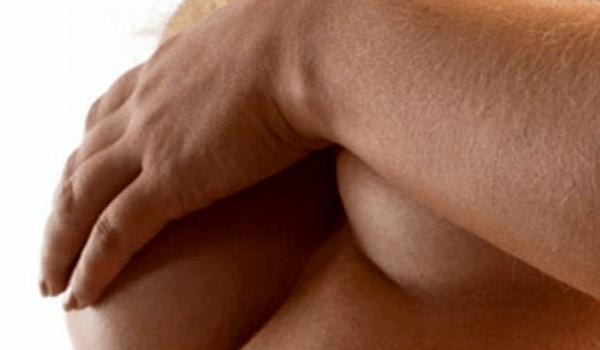 Frau verdeckt mit Arm ihre Brüste