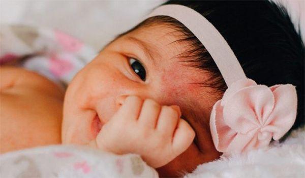 bebé con acné