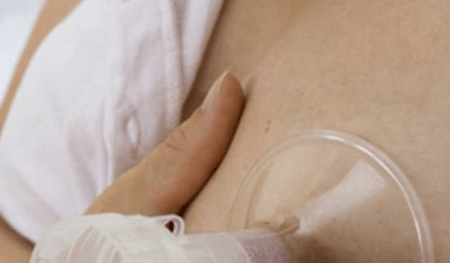 Milchpumpe an der Brust